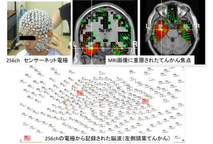 高密度脳波検査(256ch脳波)モニター写真