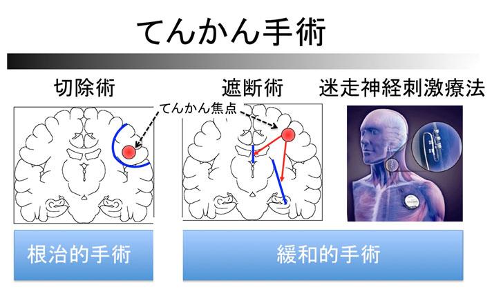 てんかん手術の切除術、遮断術、迷走神経刺激療法説明図