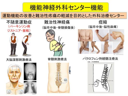 機能神経外科センター機能 説明画像