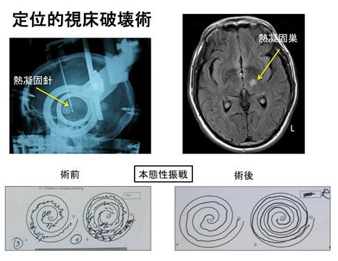 定位的視床破壊術 説明画像