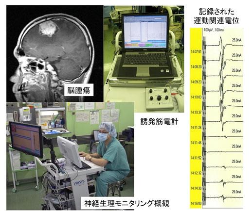 機能神経外科手術 説明画像