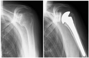 人工肩関節置換術のレントゲン写真