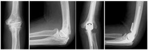 人工肘関節手術のレントゲン写真