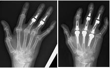 人工指関節手術のレントゲン写真