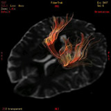 MRI検査 出力画像2