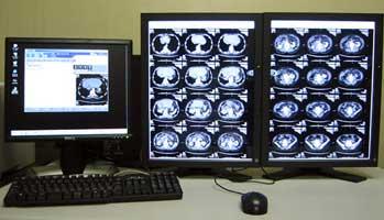 放射線レポートシステム&高精細画像ビューワ 画像
