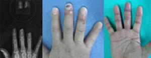 切断指再接着手術のレントゲン写真