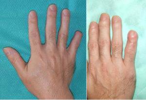 爪欠損の再建手術の説明画像