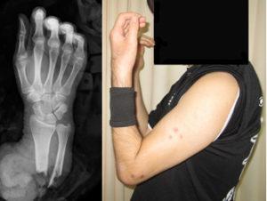 切断前腕再接着手術のレントゲン写真