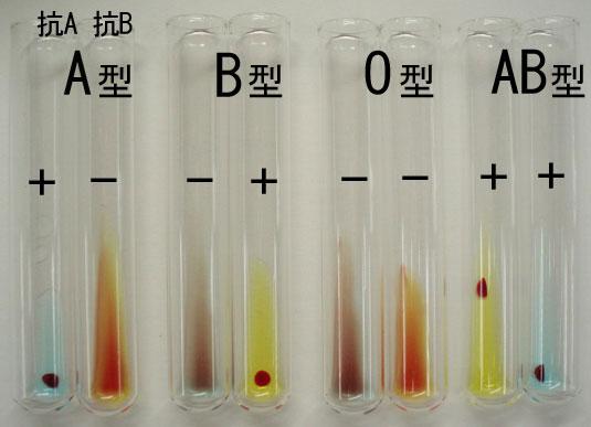 輸血検査反応の説明画像