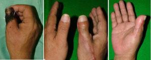 造母指手術の説明画像
