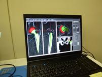 コンピューター・シミュレーションによる 術前計画