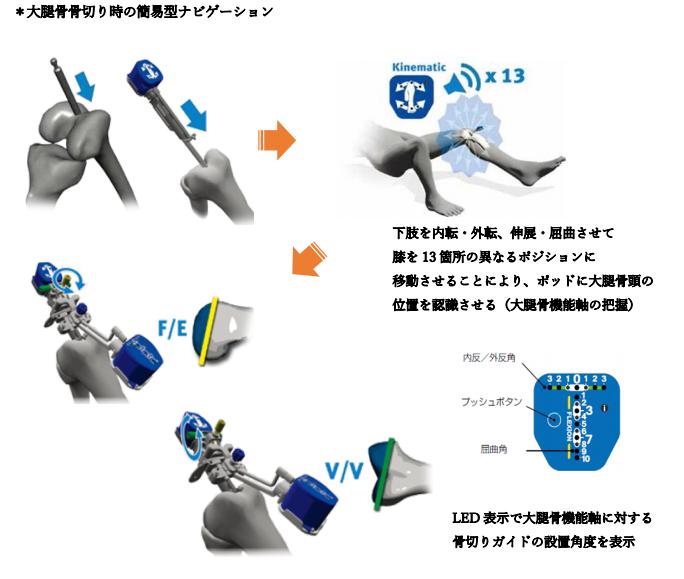 大腿骨骨切り時の簡易型ナビゲーションの説明イラスト