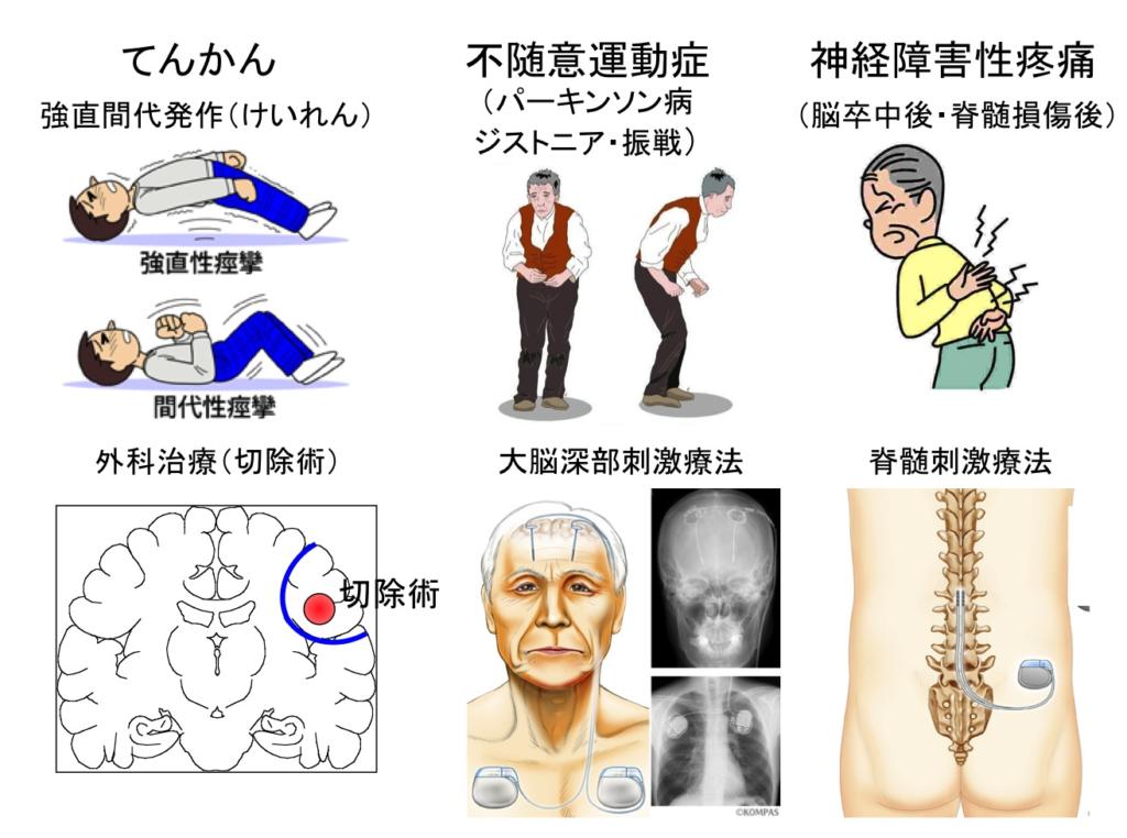 てんかん、不随意運動症、神経障害性疼痛などの治療法の説明イラスト