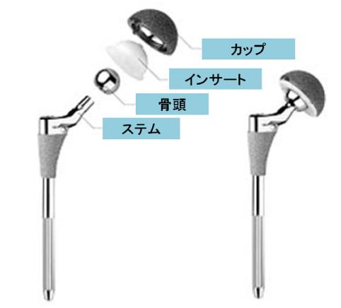 人工股関節部品の説明(カップ、インサート、骨頭、ステム)