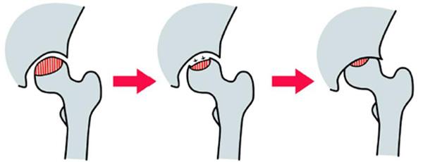 特発性大腿骨頭壊死症の病状進行の説明イラスト