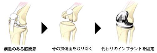 人工膝関節置換術の経過説明イラスト。損傷面を取り除きインプラントを挿入する
