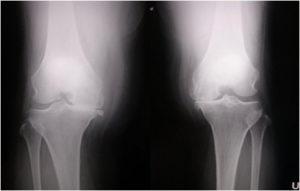手術前の変形性膝関節症(両側同時人工膝関節置換術)レントゲン写真