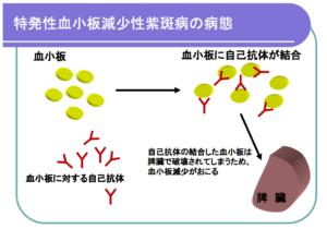 特発性血小板減少性紫斑病(ITP)説明画像