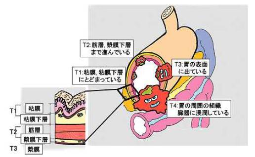 胃がん進行度の説明イラスト