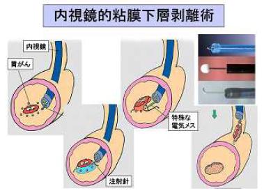 内視鏡的粘膜下層剥離術の説明イラスト