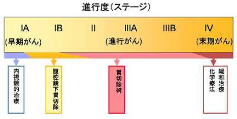 胃がん進行度(ステージ)による治療内容の違いの説明図