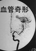 血管奇形のレントゲン写真
