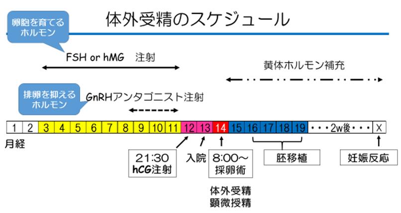 体外受精スケジュールのイメージ画像(FSH or hMG注射、GnRHアンタゴニスト注射、黄体ホルモン補充等のタイミング)