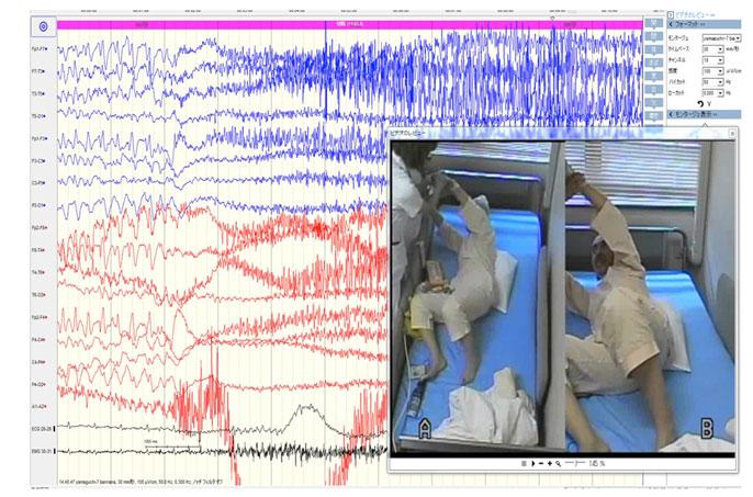 長期継続脳波ビデオ同時記録画像