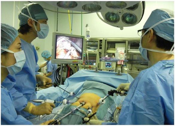 腹腔鏡下手術風景