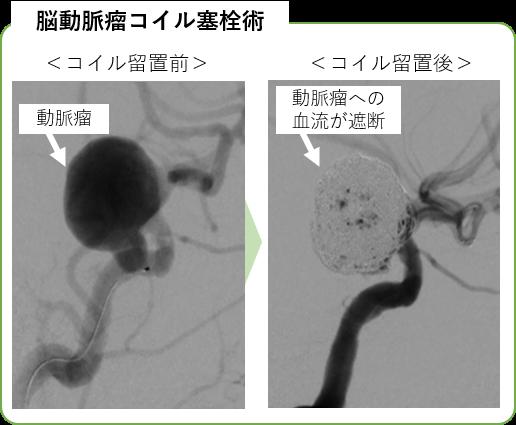 脳動脈瘤コイル塞栓術